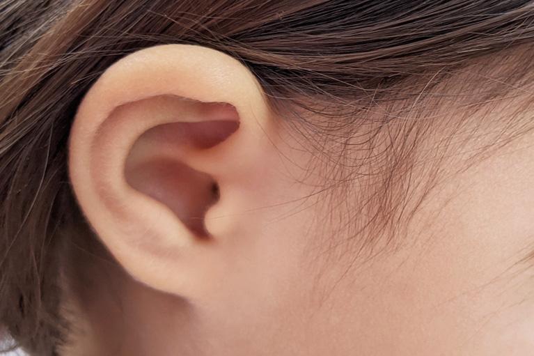耳介変形 【保険適用】