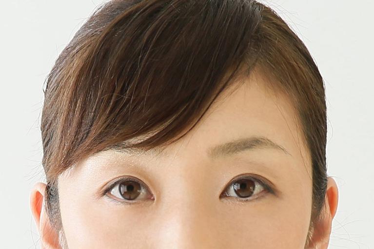 腱膜性眼瞼下垂の治療